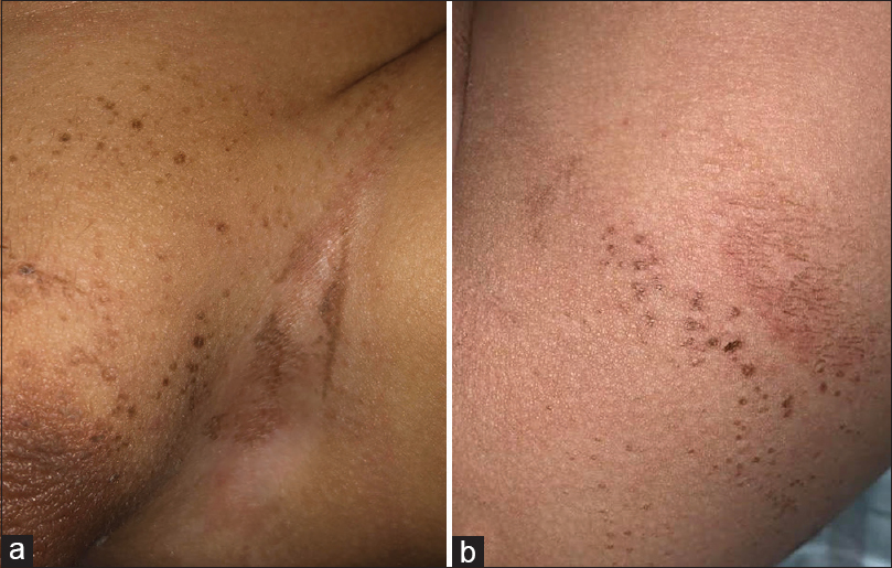 Figure 1: (a) Brown hyperkeratotic papules and plaques affecting the inguinal folds. (b) Few brown papules affecting the gluteal area